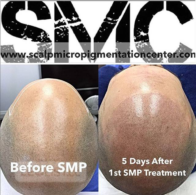 Scalp Micropigmentation (SMP) Training Program - Make $20,000 Per Month or More With SMP Franchise
