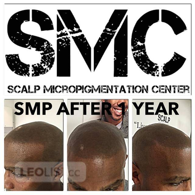 Scalp Micropigmentation Center: Online SMP Training and Certification to Become an SMP Artist