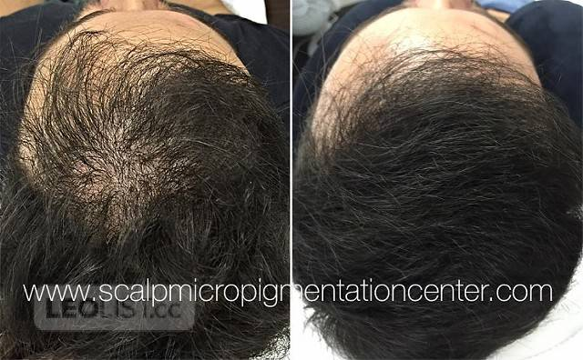 Scalp Micropigmentation (SMP) Online Training and Certification Program